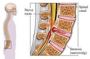 spinal stenosis treatment salt lake city - lower back pain relief - chiropractor murray utah